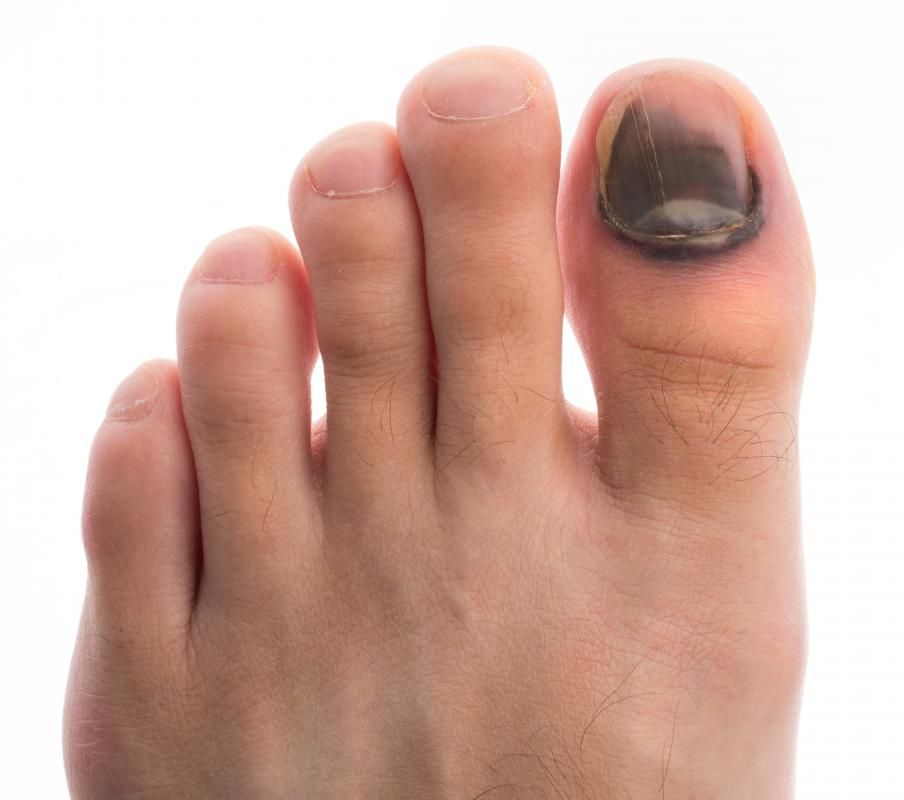 Injured toenails typically grow at a slower rate than healthy ones.