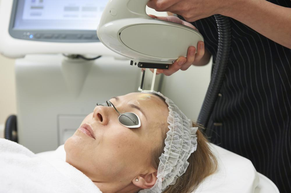Intense pulsed light photorejuvenation may be used safely with laser resurfacing.