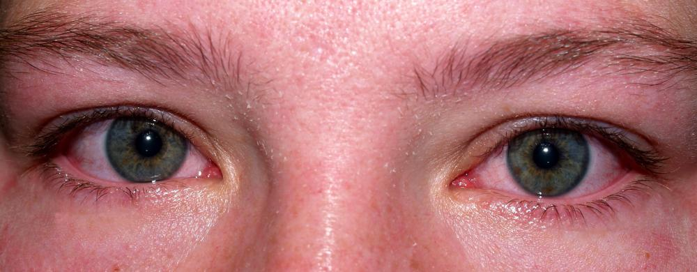 Allergens, such as chamomile, can cause eyes to become red and irritated.
