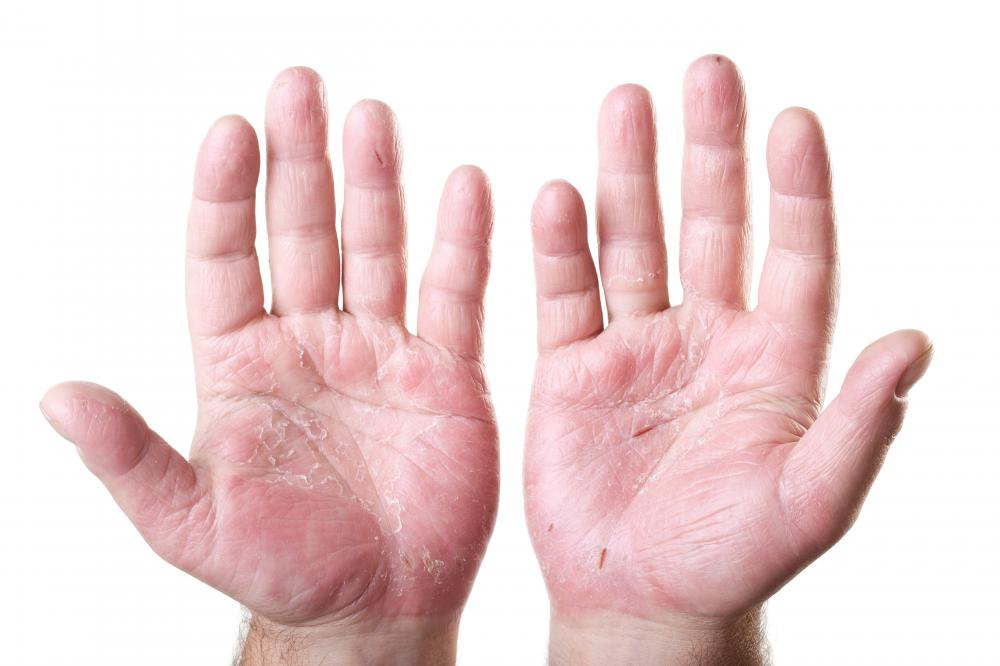 Hand reflexology may help relieve hand pain.