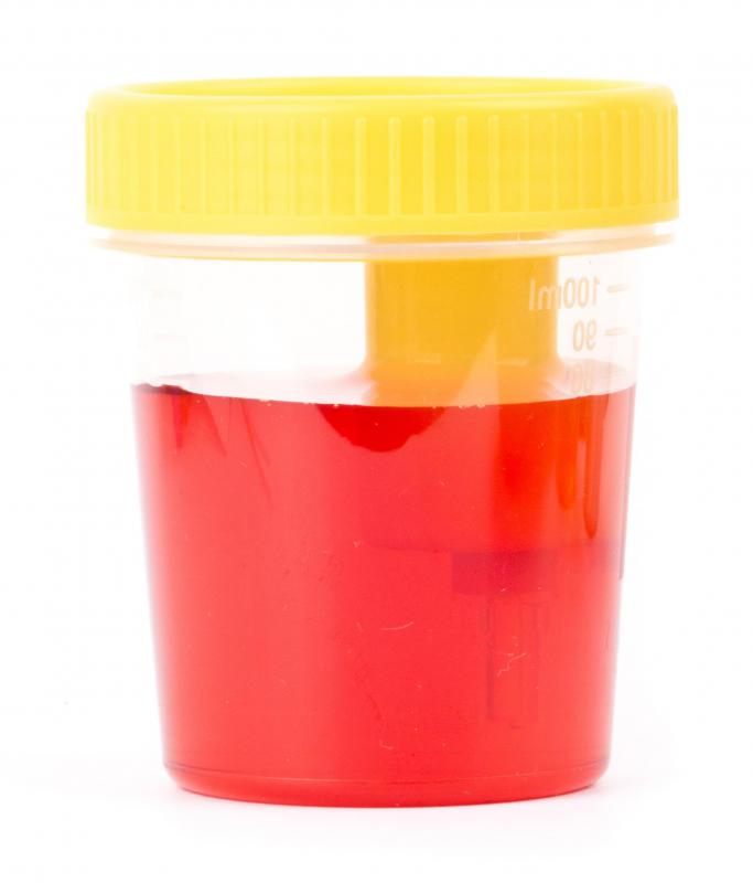 Bloody urine can be a symptom of a bladder mass.