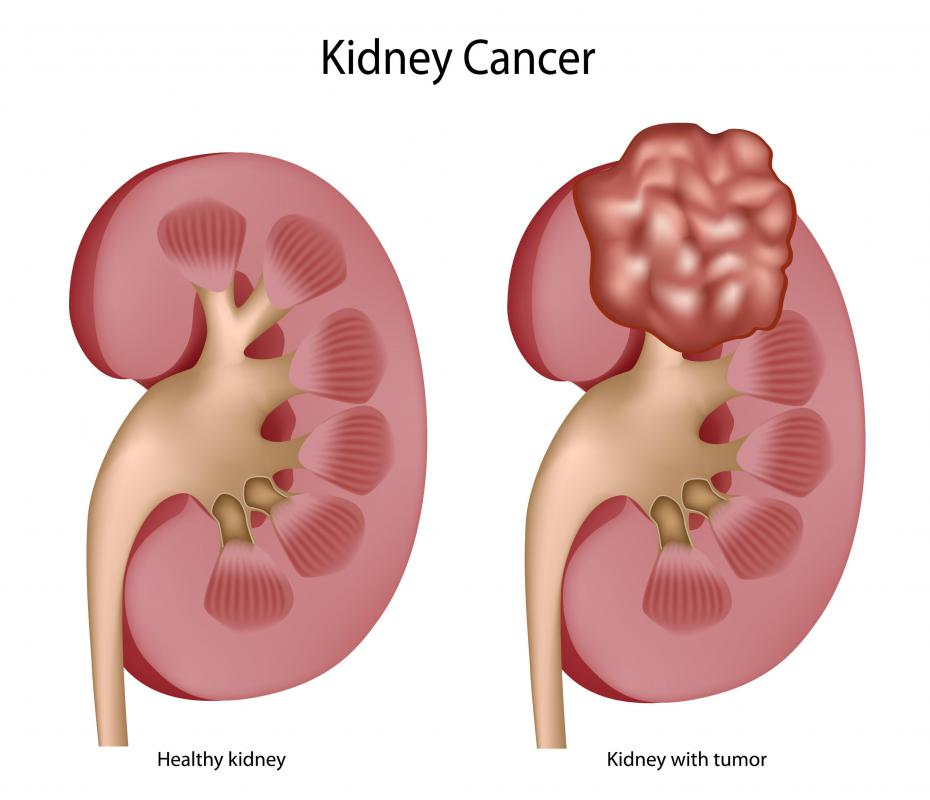 An example of a healthy kidney and one with tumors.