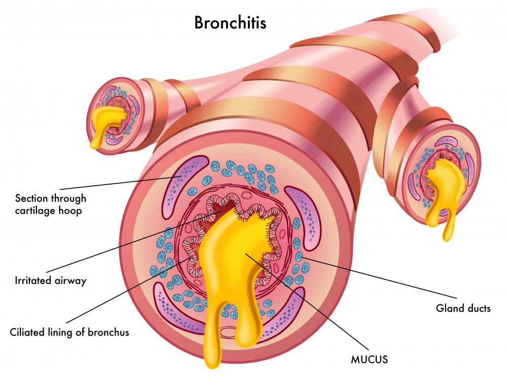 Bronchitis can cause chest pain and fatigue.