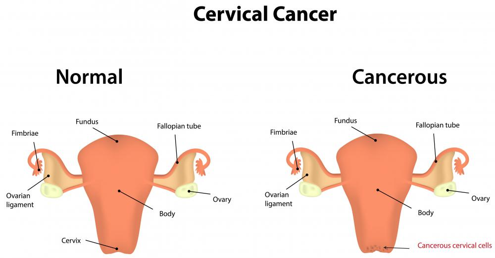 Brachytherapy is an alternative treatment for cervical cancer.