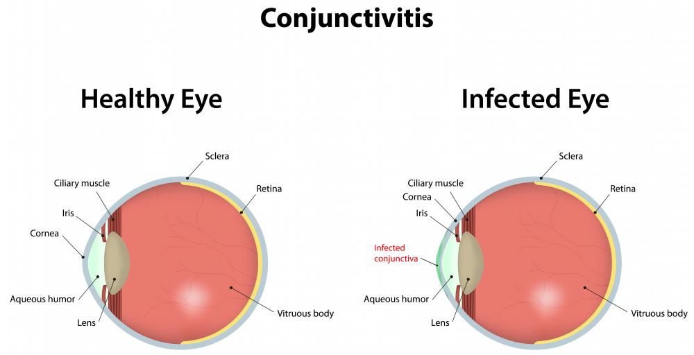 Conjunctivitis is very contagious.