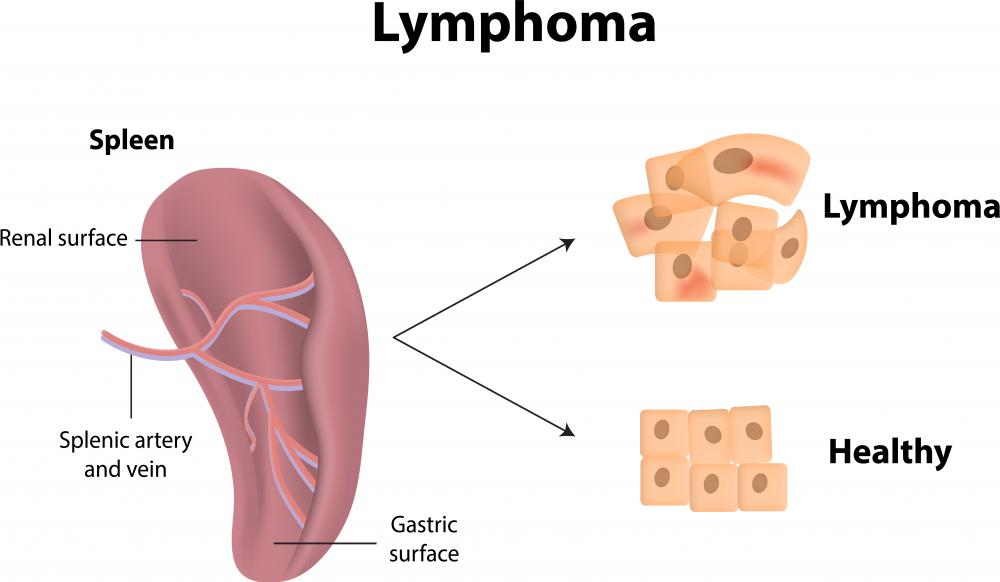 Lymphoma is characterized by malignant tumors in the lymphatic system.