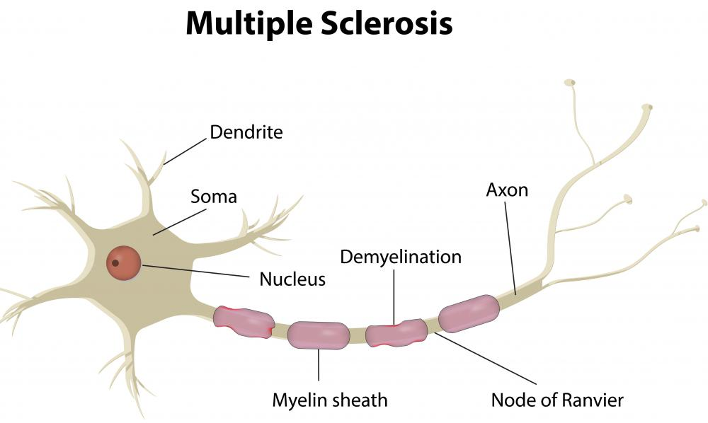 Multiple sclerosis is a white matter disease.