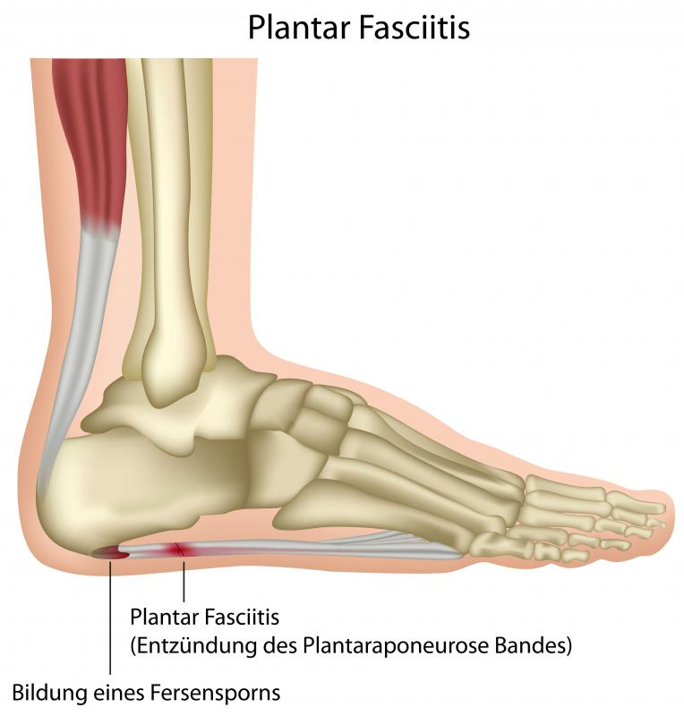 When muscles become irritated and inflamed in conditions like plantar fasciitis, painful contractions can result.