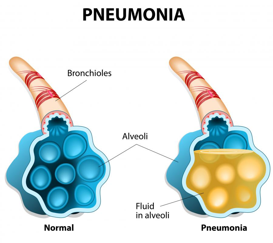 Dulcamara may be beneficial to those who are susceptible to pneumonia.