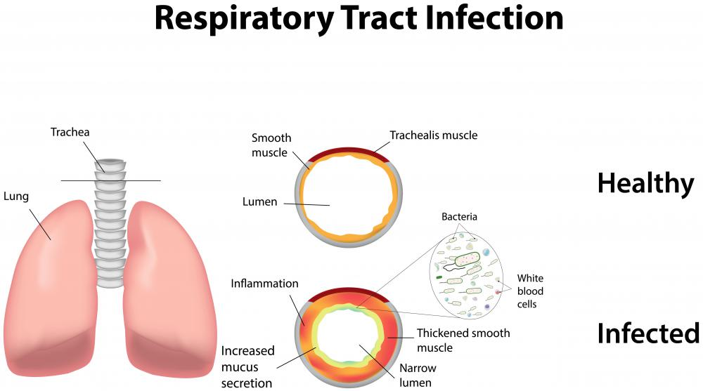 Ciprofloxacin may be more effective than amoxicillin for treating respiratory tract infections.