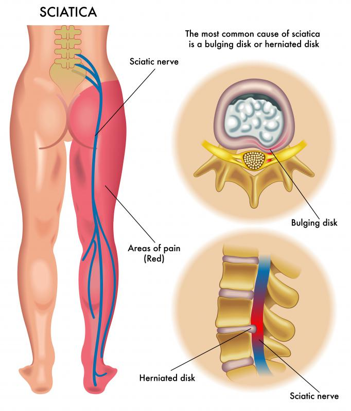 If the sciatic nerve becomes irritated, it can cause pain and numbness down the leg.