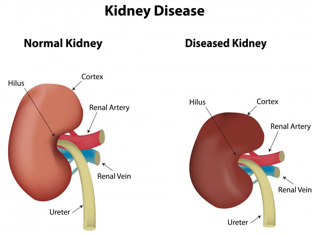 Renal failure may be acute or chronic.