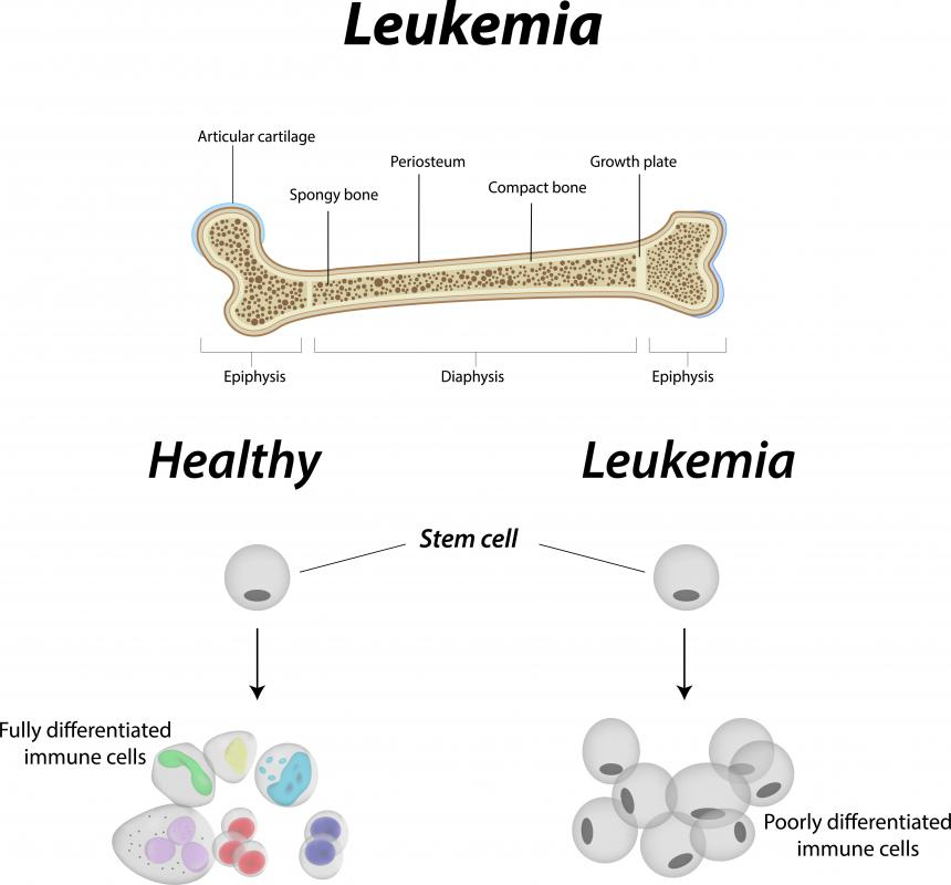 If lymph nodes swell, it can signal leukemia.