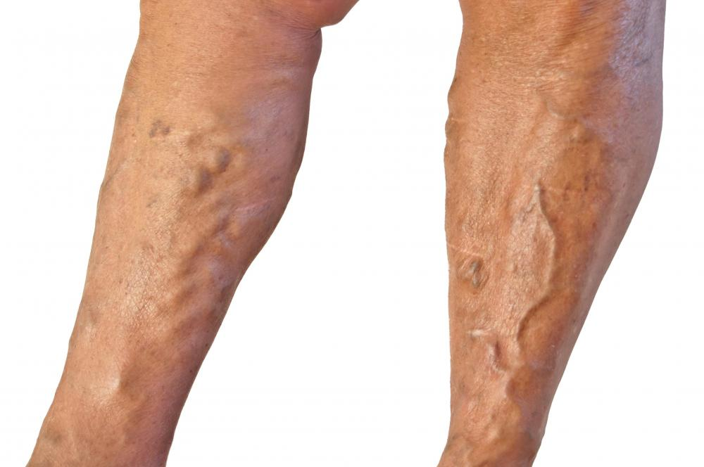 Varicose veins often appear red, blue, or purple, and noticeably bulge out of the skin.