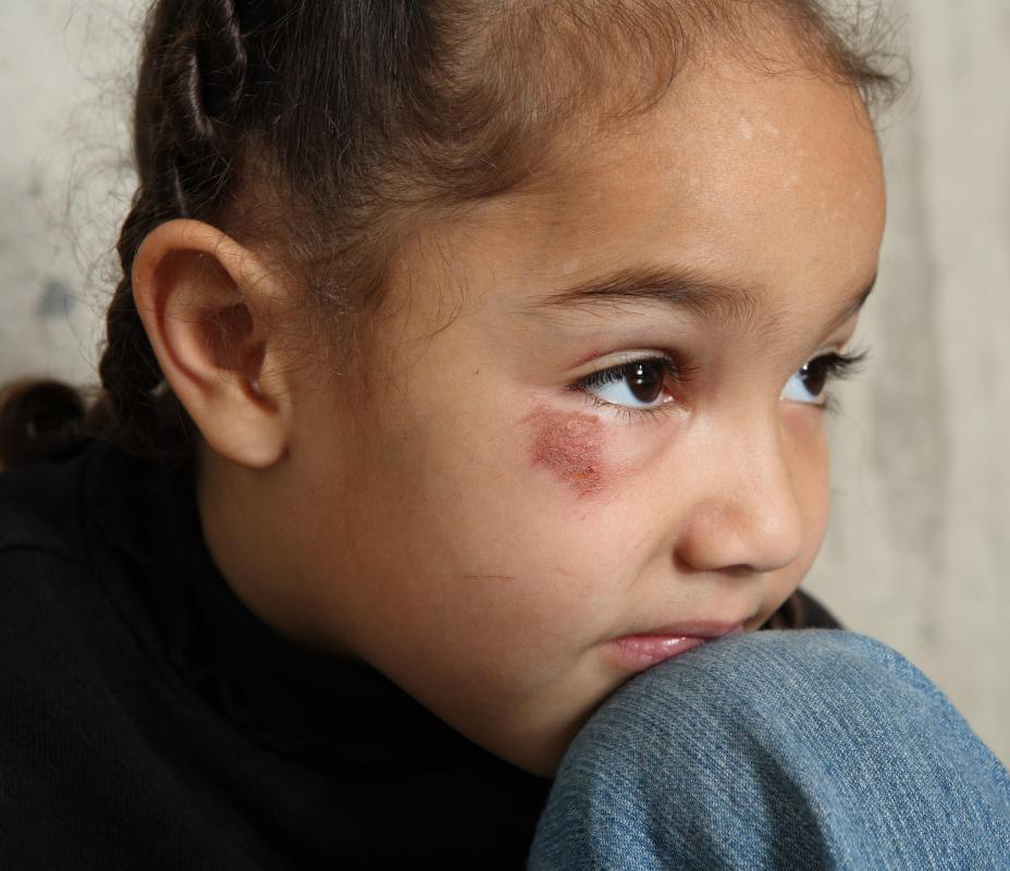 Simply suspecting abuse does not mean that a child is actually being abused.
