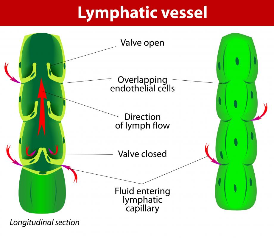 Lymph fluid can collect cancer cells and transport them throughout the lymphatic vessels to the lymph nodes.