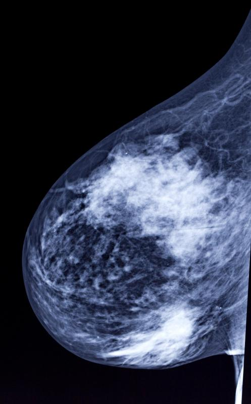 One of the most feared causes of breast bruise is inflammatory breast cancer.