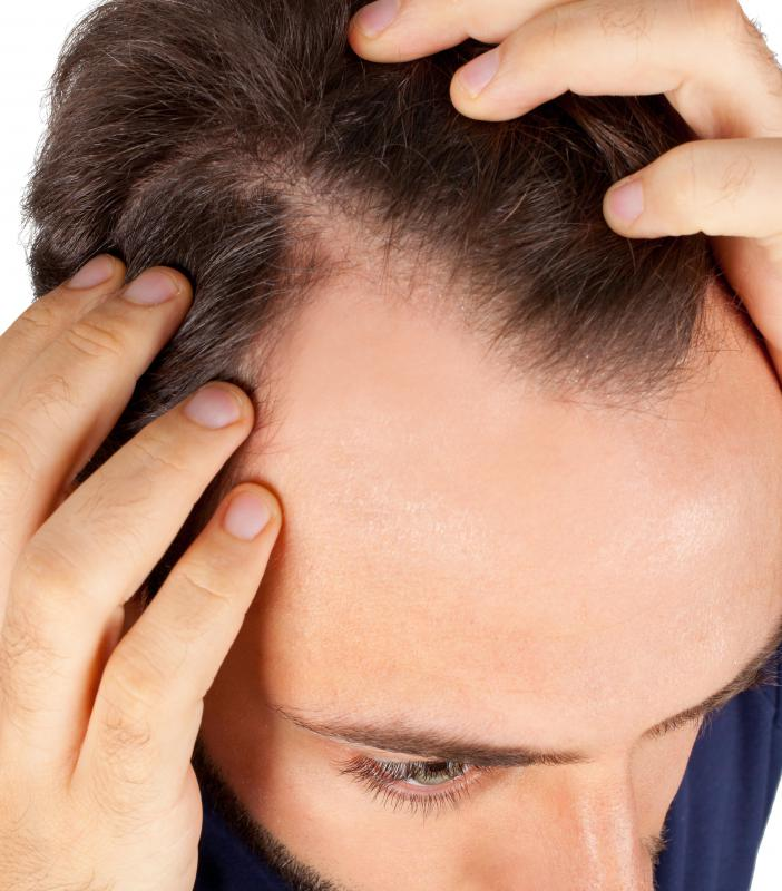 Terminal hair is the hair found on a person's head, underarms, and pubic region.