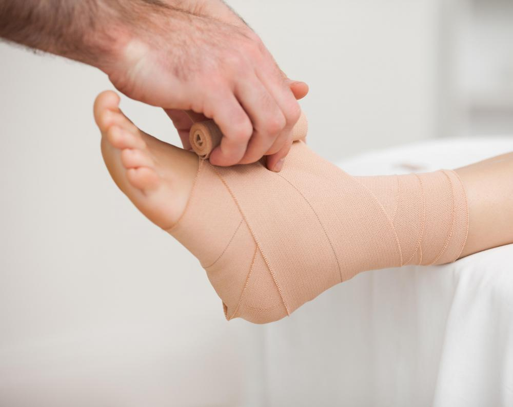 It may be helpful for a patient with acral erythema to apply wound dressings to his or her hands and feet.