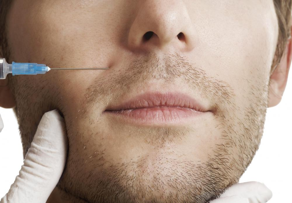 Pixel laser resurfacing may be considered a viable replacement for Botox injections.