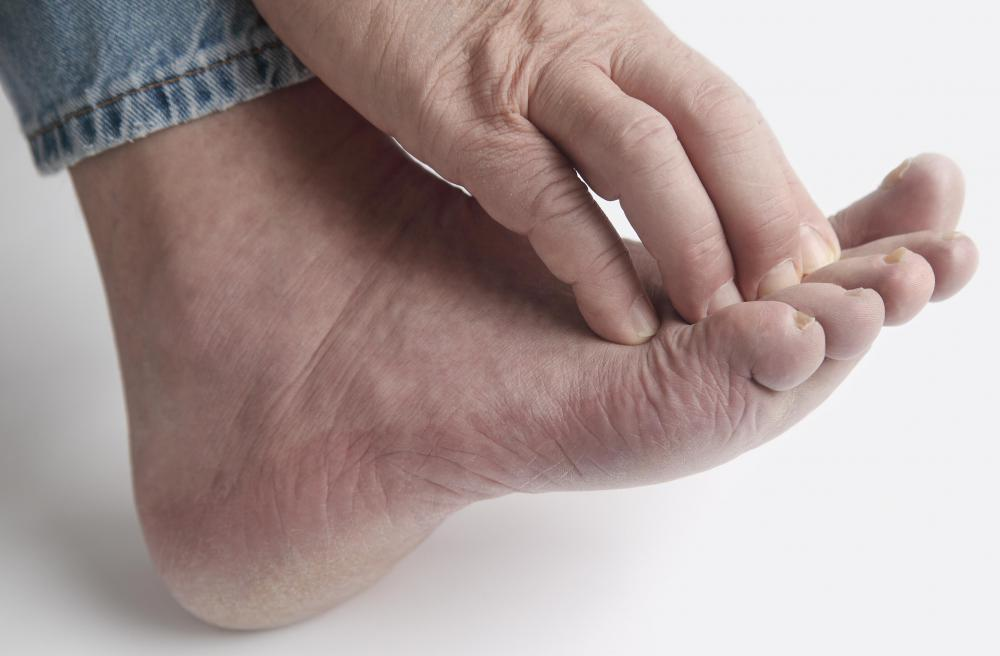 Varicose veins may cause itchiness in the lower extremities.