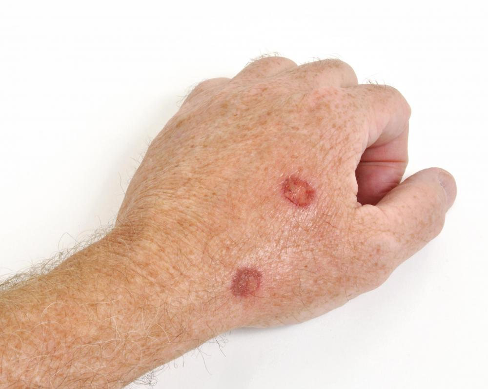 A man with cutaneous lesions.