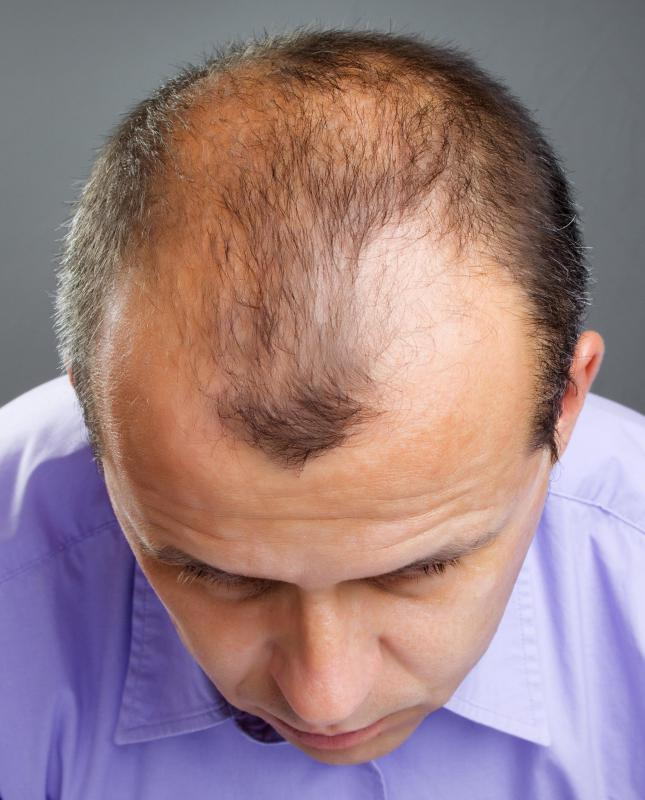 A man with thinning hair.
