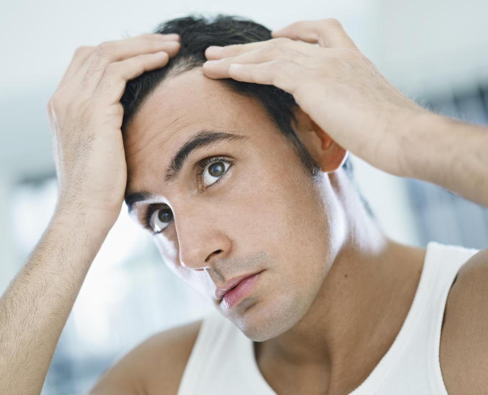 Thinning hair can be caused by genetics, medical conditions and hormonal imbalances.
