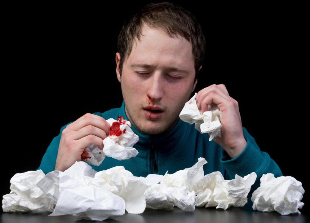 Chronic nosebleeds can be a sign of drug abuse.