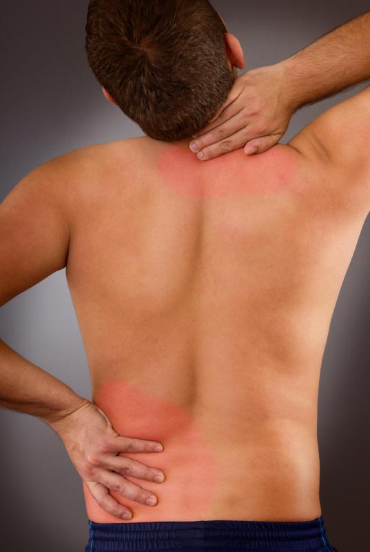 Chicken collagen may be useful in treating back and neck pain.