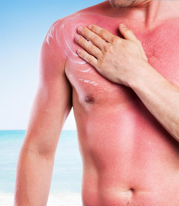 Baby oil can increase the risk of getting a sunburn.