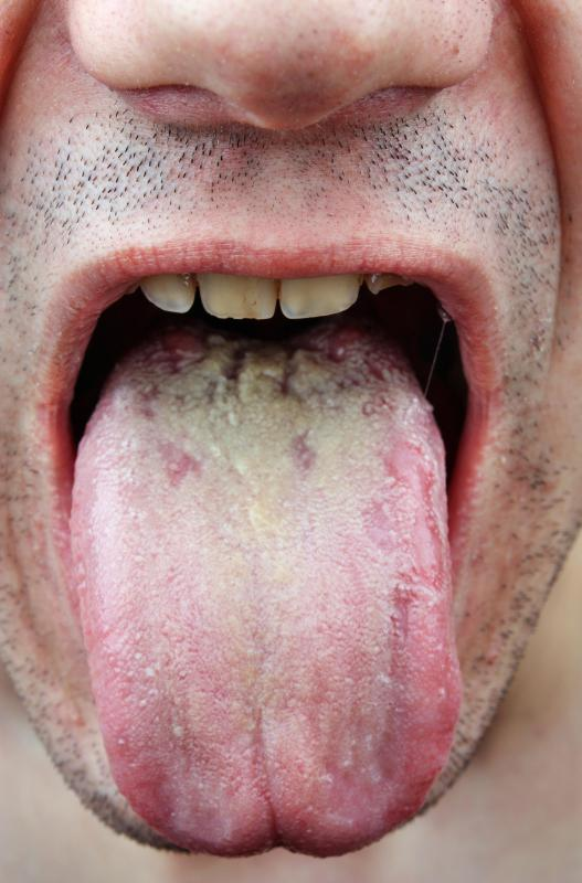 A yeast infection may occur in the mouth.