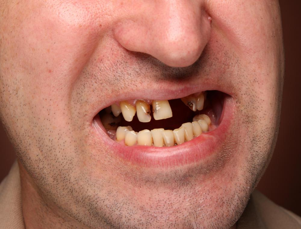 Chronic dental disease and tooth loss can lead to loss of hard tissue in the jaw.