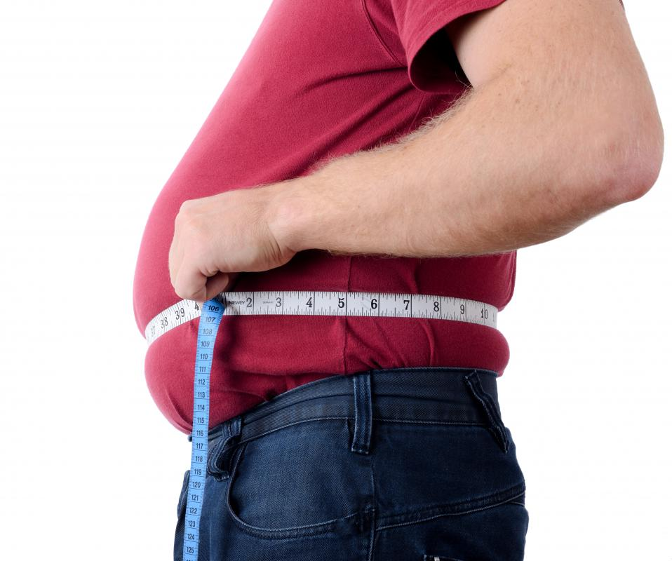 A BMI over 35 is considered obese.