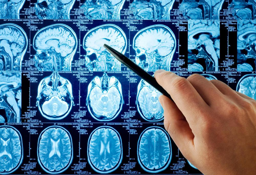 Medical imaging tests may be performed to diagnosed frontal lobe atrophy.