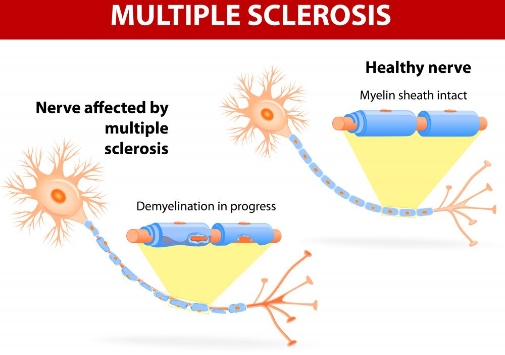 Multiple sclerosis can cause numbness in parts of the body, including the right side.