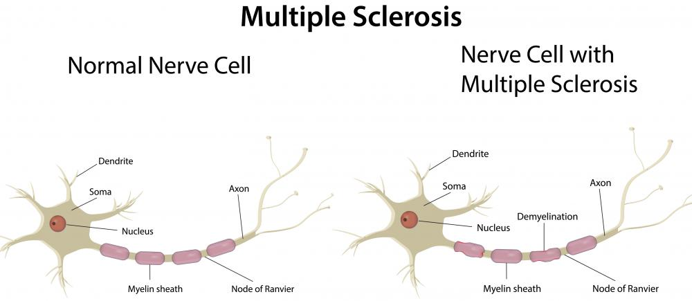 Heloderma extract has been used in the treatment of multiple sclerosis.