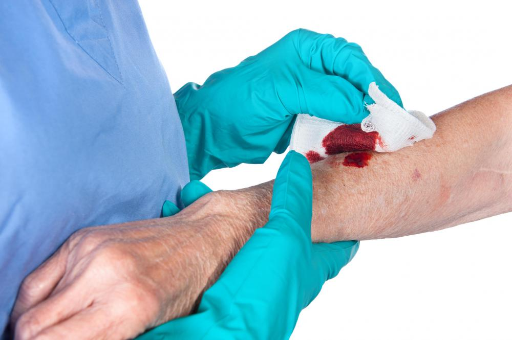 Wounds should be covered with sterile dressing, such as gauze.