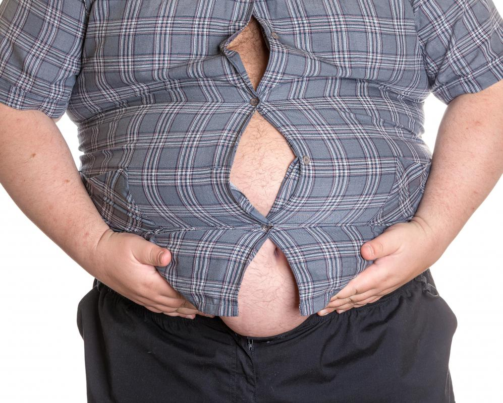 Obese individuals are at a high risk of developing cardiac hypertrophy.