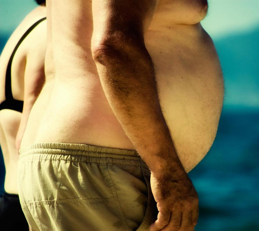 Obese individuals are at high risk of developing fatty liver disease.