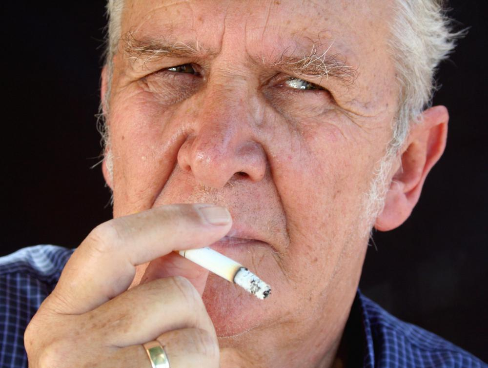 Malignant bladder lesions are more often found in male smokers over the age of 50.