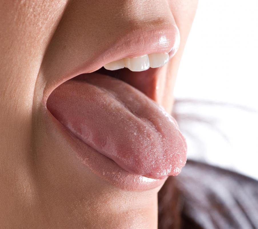 When the surface of the tongue has one or more deep gooves, it is referred to as a fissured tongue.