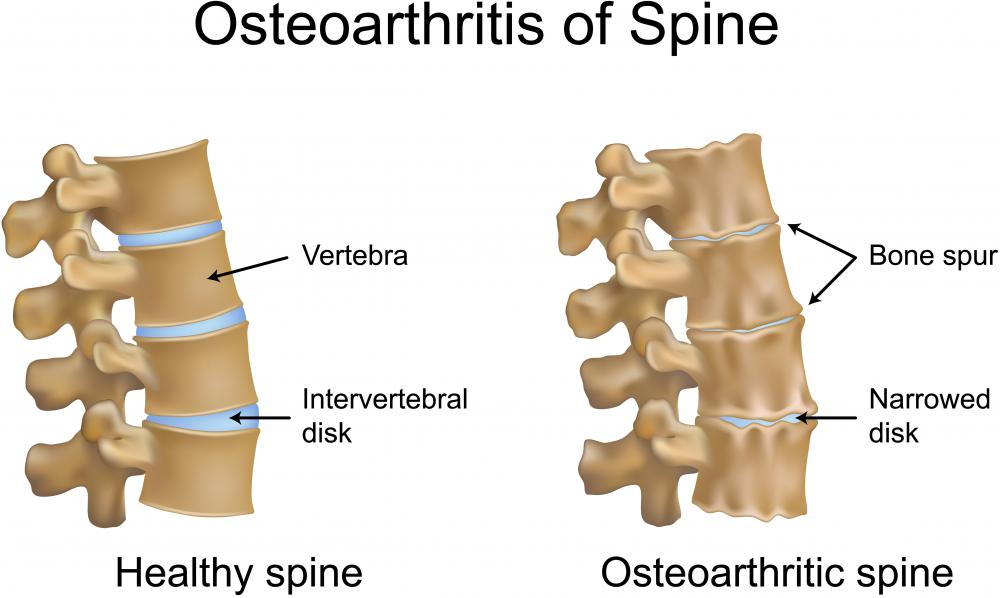 A picture of a healthy spine and one with osteophytes, also called bone spurs, connected with osteoarthritis.