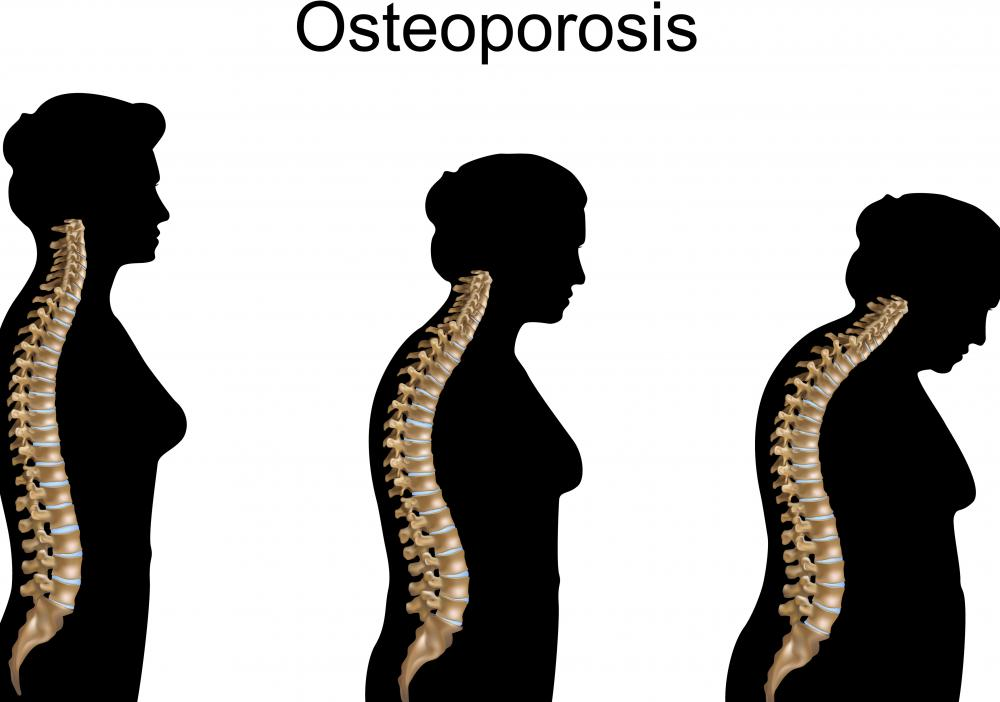 Osteoporosis can result in a pronounced hunch, and is often the most difficult type of kyphosis to treat.