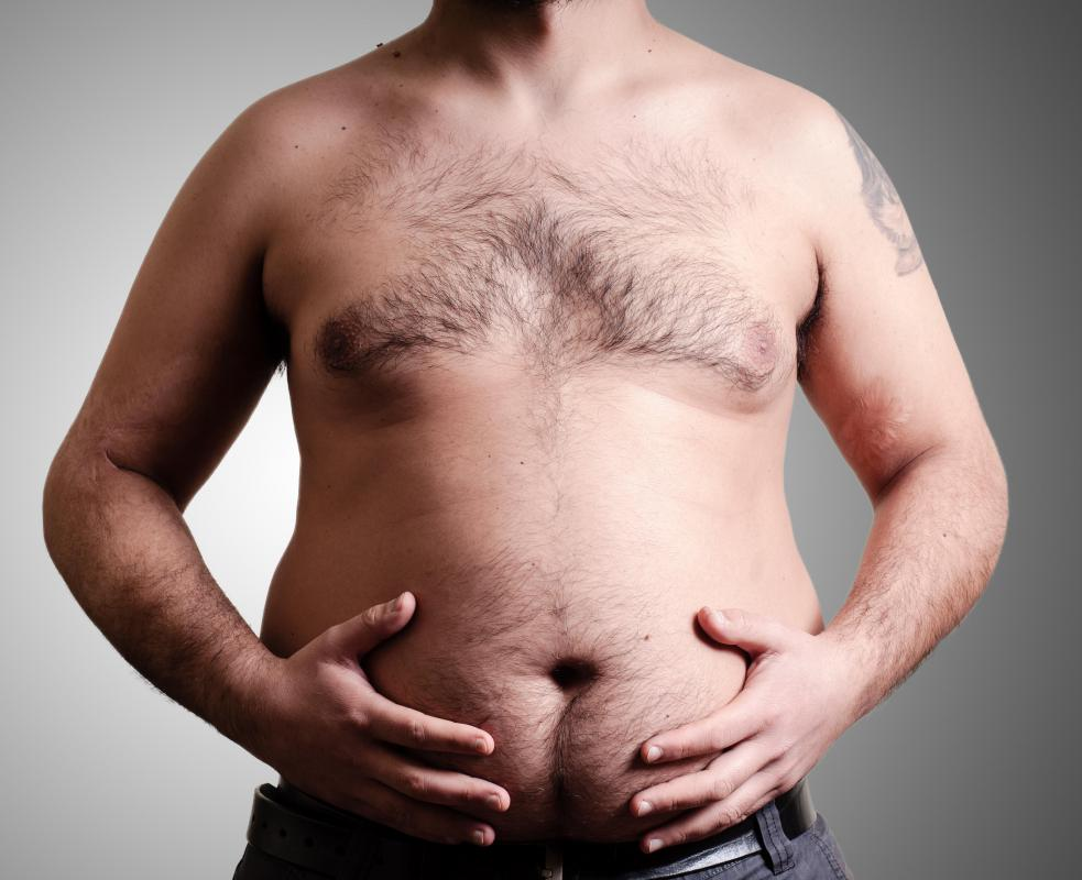 Weight gain can aggravate a direct inguinal hernia.