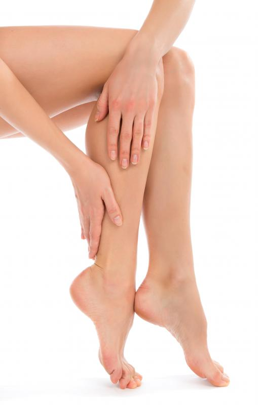 It is believed that varicose veins occur as a result of the improper function of valves in the veins.