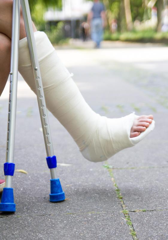 A cast will be put on a leg to prevent excess movement following a distal fibula fracture.