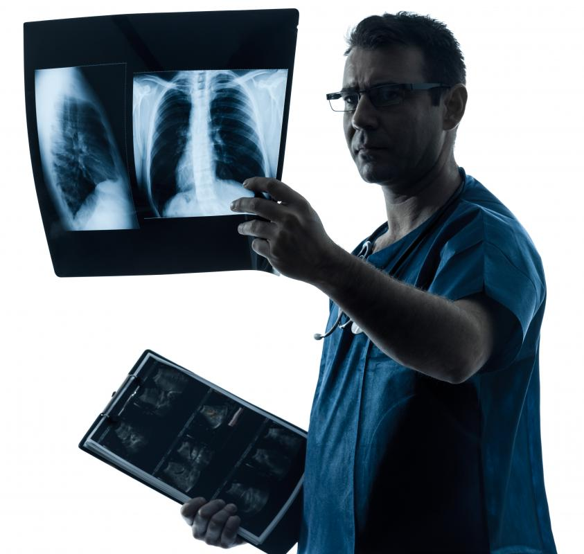 Physicians examinine chest radiographs to determine if a patient has peribronchial cuffing.