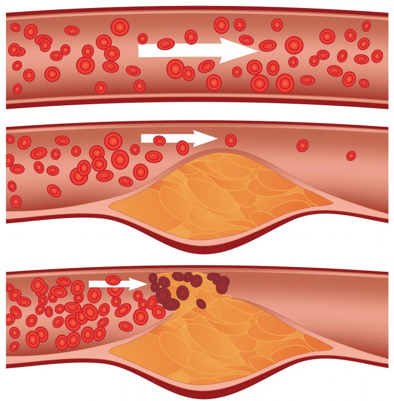 Stents are most common in coronary arteries that have been blocked by plaque.