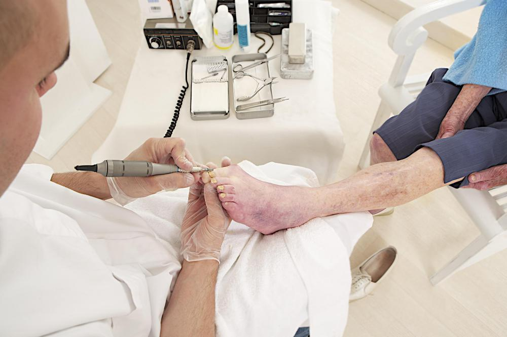 Proper foot care might require the assistance of a podiatrist.